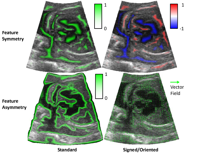 Example of feature symmetry and asymmetry calculated from an ultrasound image